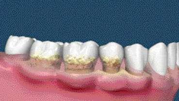 Les cancers de la tête et du cou peuvent résulter d'une parodontite