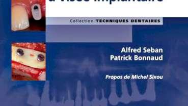 Nouveauté : Le bilan préopératoire à visée implantaire