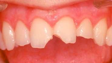 Il punto di vista dell'odontologo forense nella valutazione dei traumi dentali