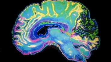 Elektrostymulacja mózgu sposobem na strach przed dentystą?