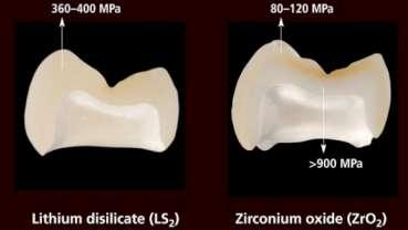 Étude : le disilicate de lithium IPS e.max est le plus matériau céramique le durable testé à ce jour