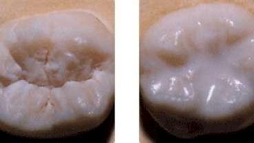 Sealants dentaires: plus seulement pour les enfants