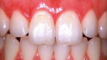 Füllungen im Zahnhalsbereich – mit dem Laser im Vorteil (Teil 1)