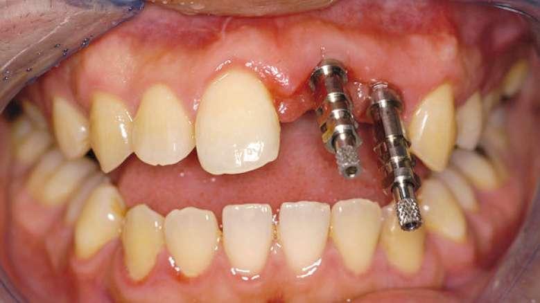 Die Implantatabformung – drei Techniken im Überblick