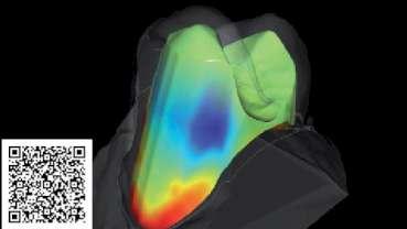 Vedci vyvíjajú softvér na zlepšenie nasadenia koruniek na zuby