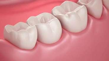 ترمیم خودبهخودی دندانهای فاسد
