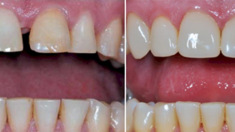 Фабрични фасети за фронтални зъби
