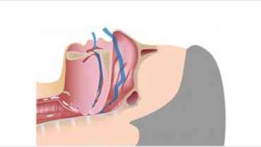 Spánková apnoe a ortodoncie: interdisciplinární přístup k léčbě chronické spánkové poruchy