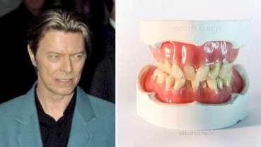 """Rozhovor: """"Bowieho zuby byly stejné jako vše, co se ho týká: jiné"""""""