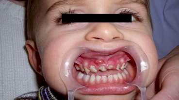 Narkose-Sparkurs: Kinderzahnärzte und Anästhesisten schlagen Alarm