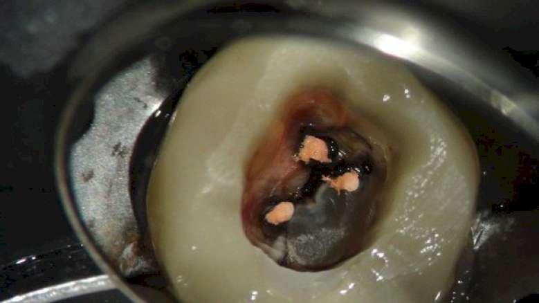 De endodontische obturatie