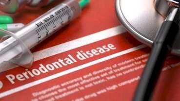美研究人员发现牙周疾病与牙缺失和死亡率之间的关联
