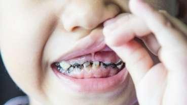 澳研究人员发现延长哺乳期与龋齿之间的关联