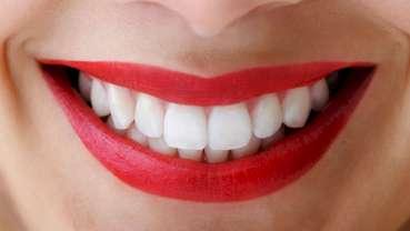 آیا سفیدی دندانها به معنی سلامت آنهاست