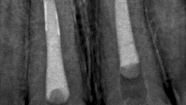 Irrigating the root canal: A case report