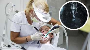空化射流能够更轻易地移除牙菌斑