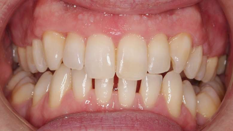 Getting to grips with general dental practitioner orthodontics