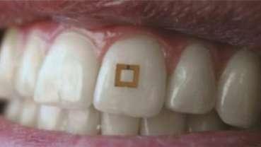 Новый устанавливаемый на зубе микрочип следит за питанием пациента