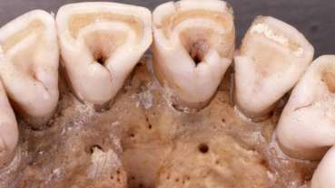 Shovel-shaped incisors a result of genetic mutation from last ice age