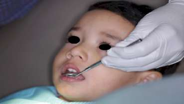 Fluoride varnish application aids in prevention and progression of caries in children