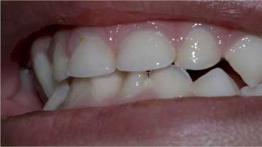 Treating Incipient Dental Caries In Children, A New Method Developed
