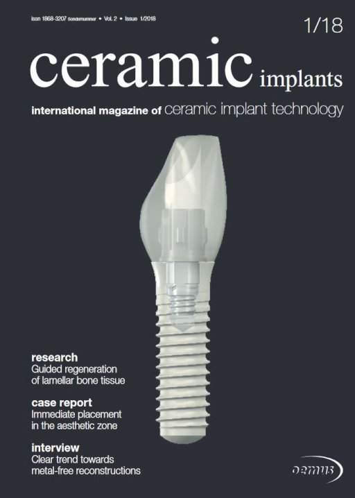 ceramic implants international No. 1, 2018