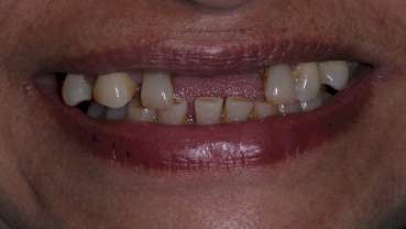 Poor dental health may indicate diabetes risk
