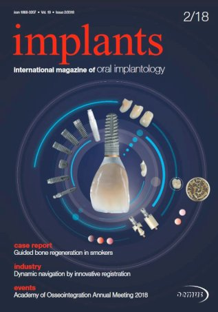implants international No. 2, 2018