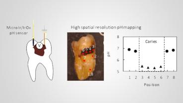 日研究人员发现对抗龋齿的新武器——微型pH传感器