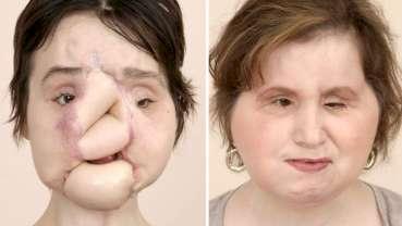 Млада жена претърпя успешна трансплантация на лице