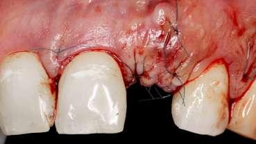 Pacijenti alergični na penicilin rizičniji za gubitak dentalnih implantata