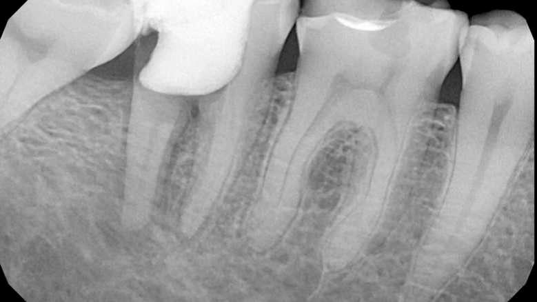 Riješavanje problema neuspjelog endodontskog liječenja zuba