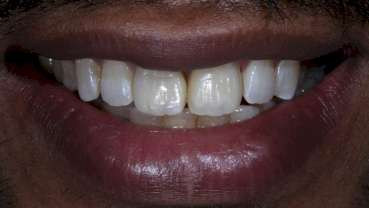 Bringing anterior direct composite restorations to life with histologic layering protocols