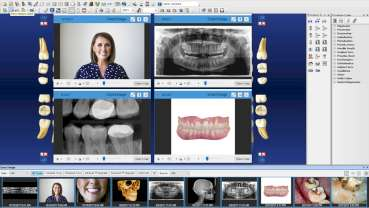 Henry Schein One launches Dentrix G7 in Canada