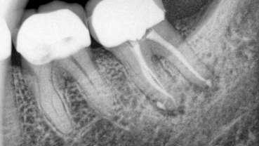 השפעת הארכת כותרת על שרידות שיניים אחוריות עם טיפול שורש כעבור עשר שנים