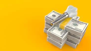 Le marché des implants dentaires devrait atteindre 5,9 milliards de dollars d'ici 2028