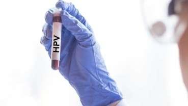 Lek na raka może pomóc w leczeniu zakażeń wirusem brodawczaka ludzkiego