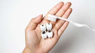 De nouvelles obturations antibactériennes contre les caries dentaires récurrentes