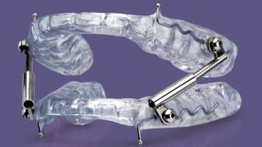 Glidewell Dental introduces a new oral sleep appliance