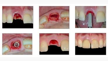 Immediate Implant Placement with Socket Shield Technique followed by Chairside Provisionalisation