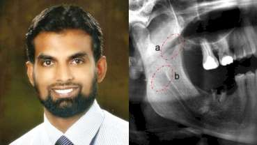 Discovery of 'Coronoid Foramen' by a Bengaluru surgeon Dr Nyer Firdoose could explain pain after LA