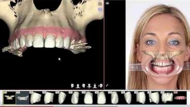 ¿Qué convierte a un Ortodoncista en Experto? (Parte II)