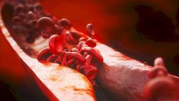 Mundgesundheit beeinflusst Herzgesundheit