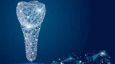 Individuelle Implantate basierend auf CAD/CAM-Verfahren