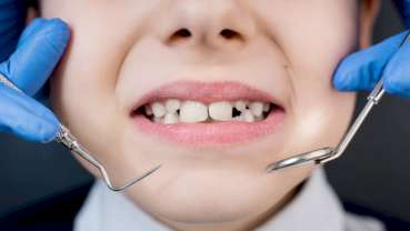Improving oral health of people with intellectual disability