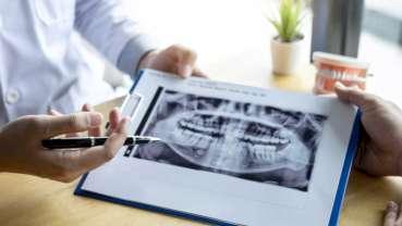 Można zapobiec uszkodzeniu kości szczęk w zabiegach chirurgicznych u pacjentów chorych na raka
