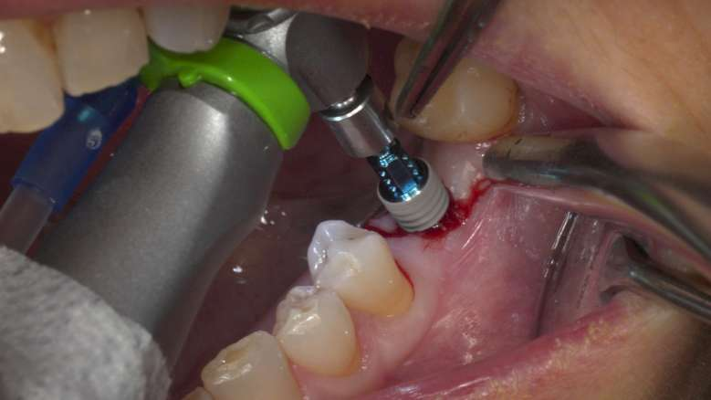 Conventional and immediate loading with final n!ce screw-retained crowns