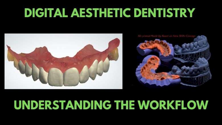 Digital Aesthetic Dentistry: 6-Step Workflow Integrates Multiple Systems, Gadgets, and Tools