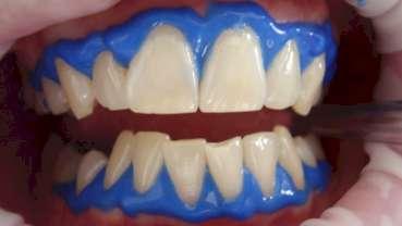'Tanden bleken' populairste zoekopdracht