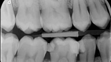 Vier jaar later: case report endodontische behandeling 46